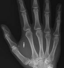RFID chip, the mark of the beast, in the right hand
